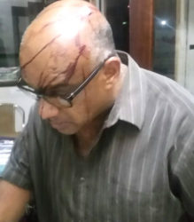 A security guard, Kadarnauth, showing his injuries after the attack